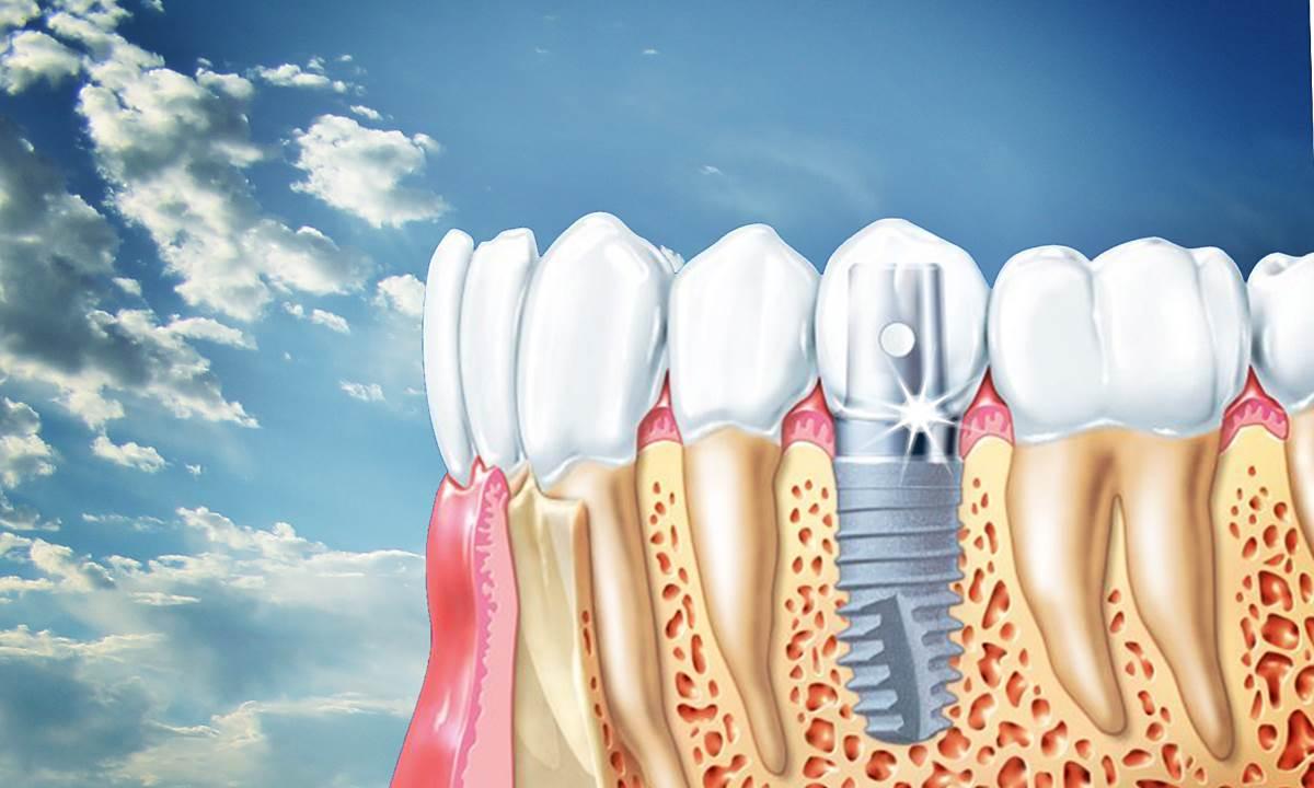 Купить костные материалы и другие товары для стоматологии