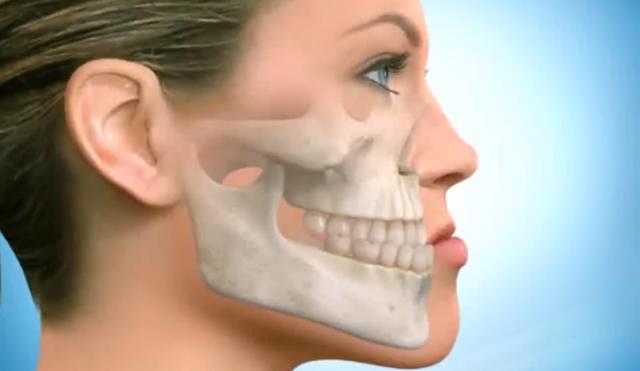 Почему имплантация зубов - это правильный выбор и польза для здоровья